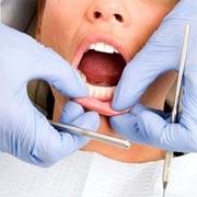 Discount Dental Plan - Alternative Dental Insurance