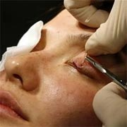 Blepharoplasty Sagging Eye Surgery