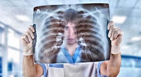 Chest mucus and phlegm