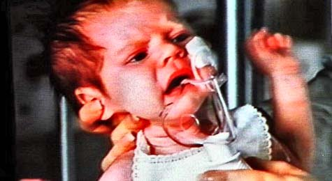 Pertussis - Whooping Cough