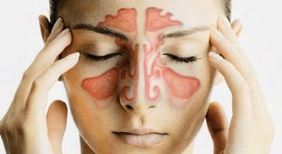 Sinusitis Problem Solution